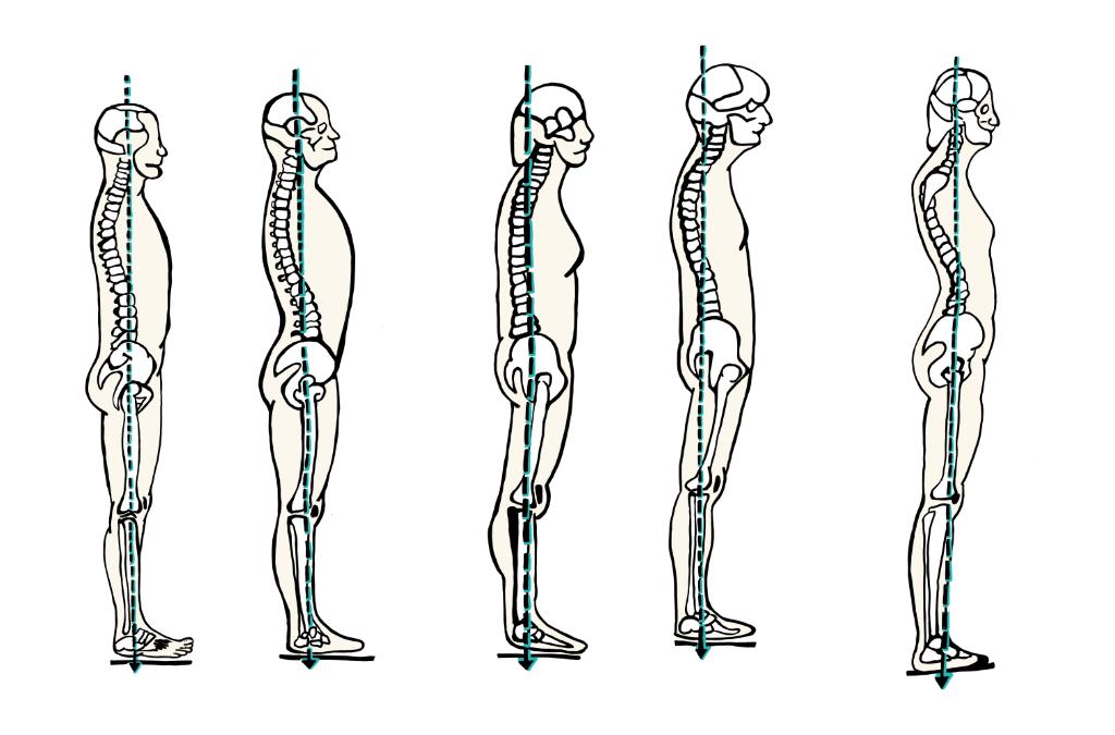 5 typov držania tela. Ktoré máte vy?